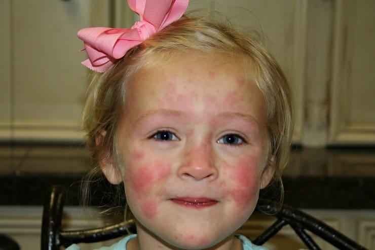 , как вылечить аллергию +у ребенка +на сладкое